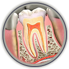 Root Canal Treatment Somerville
