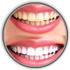 Teeth Whitening Somerville