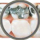 Teeth Whitening Somerville